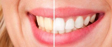 Albirea-dentara