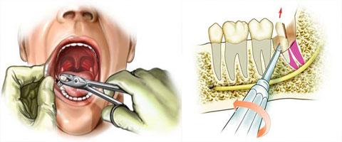 Extractia-dentara